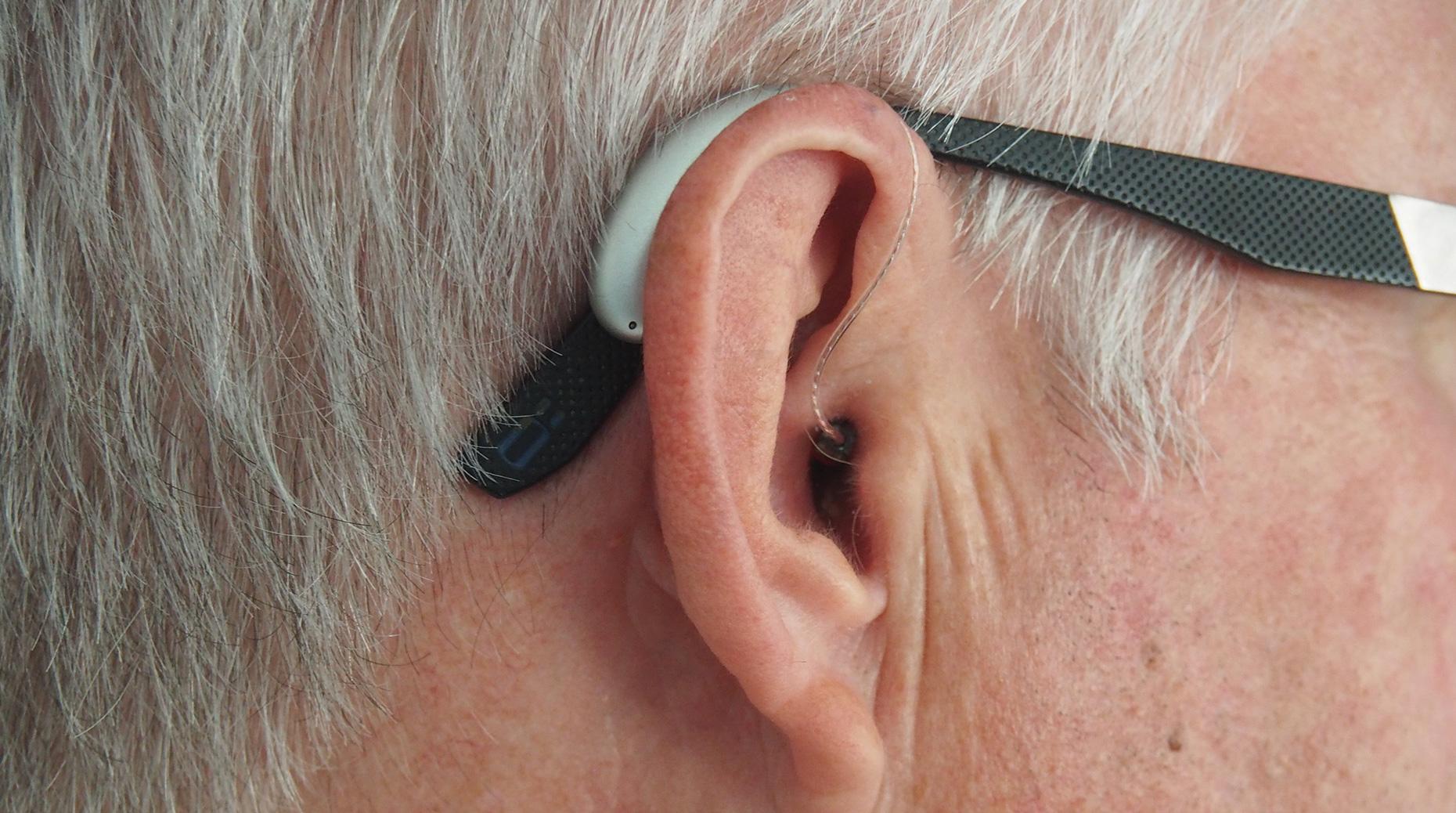 100% santé : Polémique autour des audioprothèses de classe 2